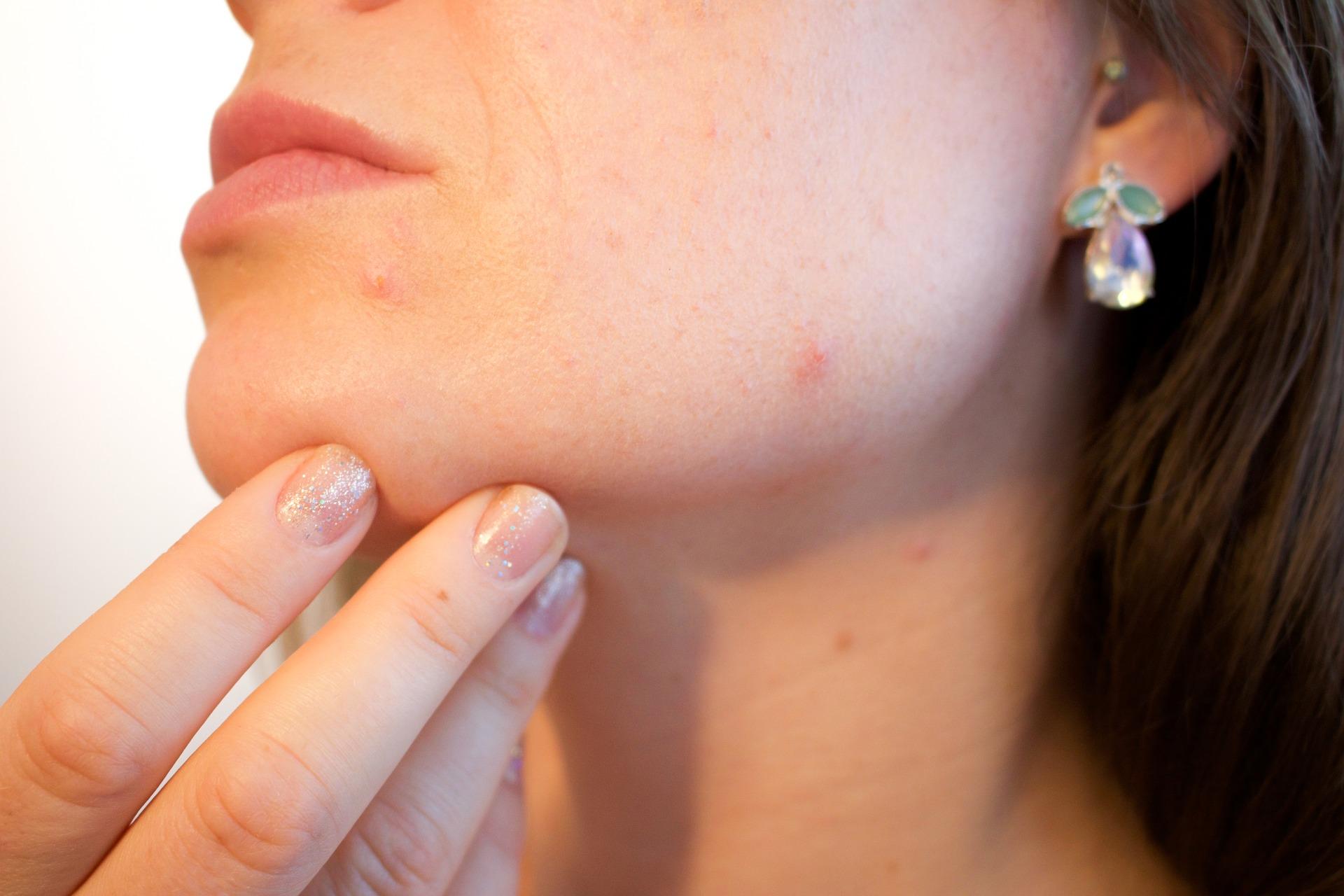 Haut Akne Pickel